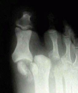 Травма сустава пальцев ног