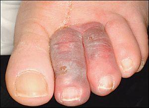 Отёк пальца ноги