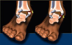 Серьёзный перелом ноги