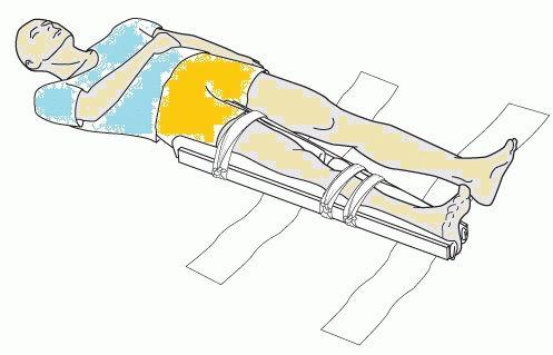 Какие суставы надо фиксировать при переломе бедра тутора на коленные суставы б/у