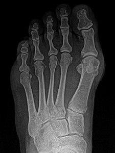 Рентгенография пальцев ног