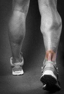 Травма сухожилия ноги