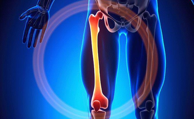Лечение некроза суставов в кисловодске кости составляющие коленный сустав