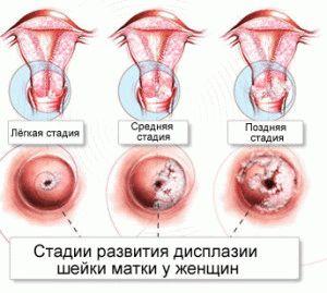 Осложнение дисплазии