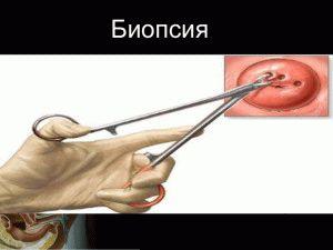 Биопсия ткани