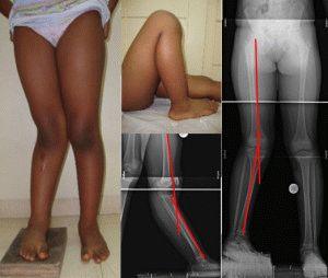 Дисплазия колена