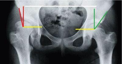 бандаж на голеностопный сустав киев