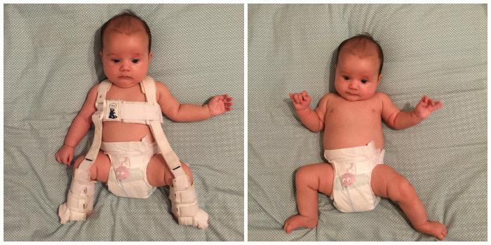 Последствия оперативного лечения дисплазии тазобедренного сустава лучевая диагностика височно-нижнечелюстного сустава