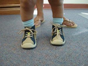 Нарушение походки у ребёнка