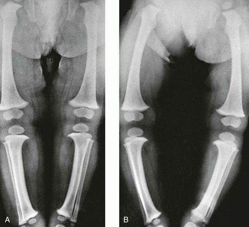 Замена тазобедренного сустава у детей кора осины на водке дозировка при в тазобедренном суставе