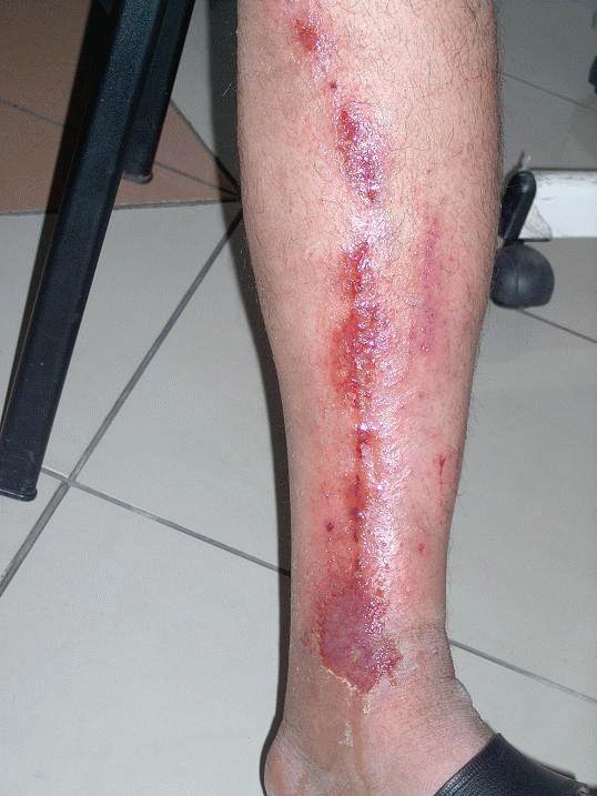 Мокнущие раны на ногах: лечение и предотвращение последствий