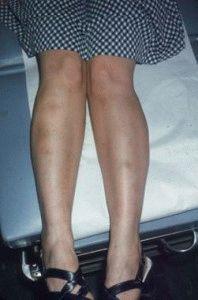 Диагностика болезни кожи