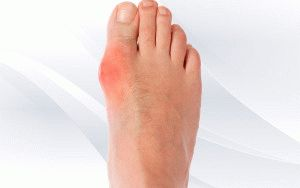 Лечение шишки у пальца