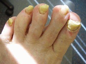 Болезненная ногтевая пластина