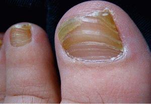 Изменение вида ногтя