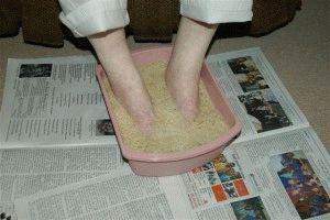 Лечение грибка ног