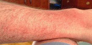 Аллергическое проявление