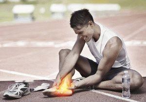 Растяжение сухожилия стопы