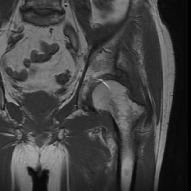 Болезни тазобедренного сустава у женщин и мужчин