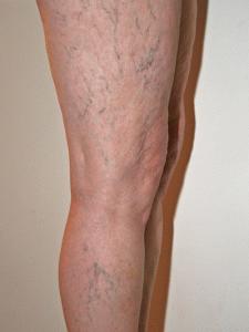 Расширенные вены ног