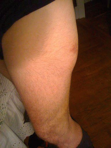 Ушиб тазобедренного сустава лечение реабилитация после артроскопии коленного сустава отзывы