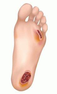 Раны на ногах