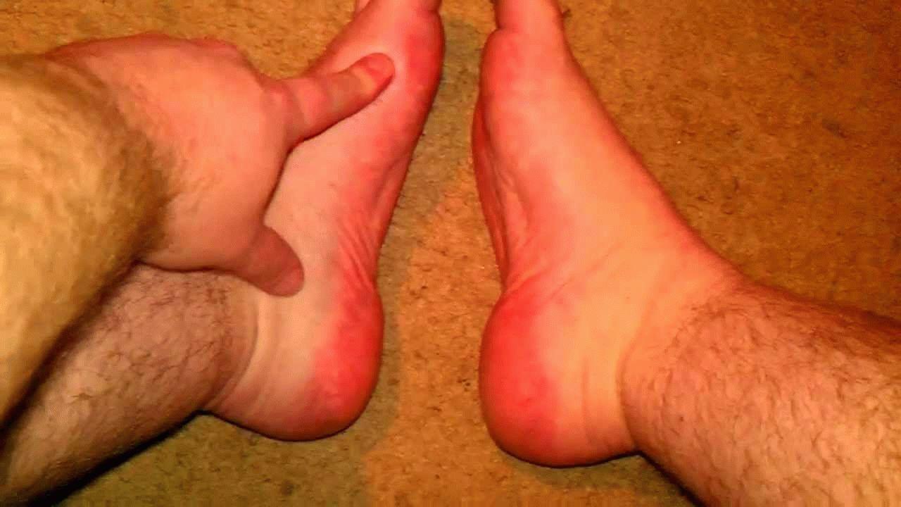 Отек в суставах мягких тканях стопы эндопротезирование коленного сустава в барнауле по квоте