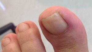 Ногтевой валик ноги