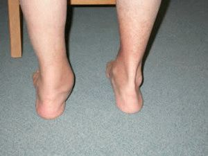 Вальгусная деформация ног