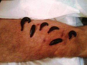 Лечение ног пиявками