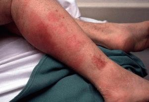 Стрептококковая инфекция