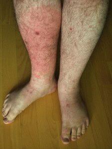 Рожистая болезнь