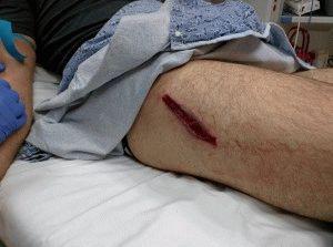 Нога поранена