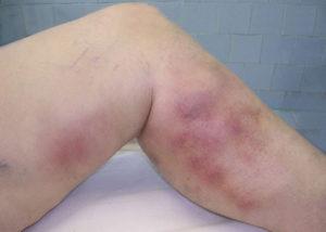 Острый тромбофлебит ног