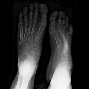 Болезнь конская стопа
