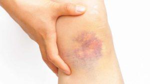 Травмирование ноги